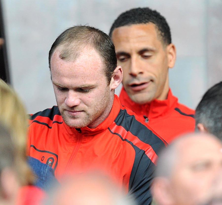 24055 - Wayne Rooney admits to hair transplant